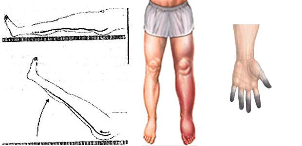 tromboza