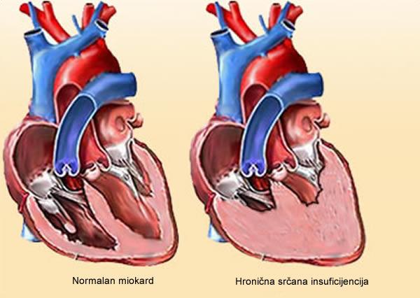 Hronična srčana insuficijencija