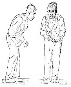 Parkinsonizam