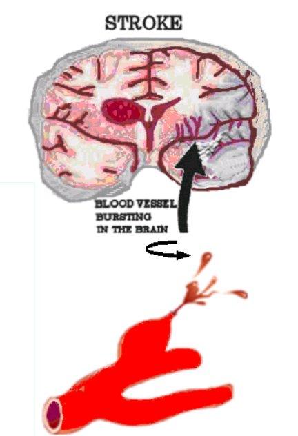 hemoragični CVI