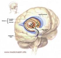 Parkinsonova bolest
