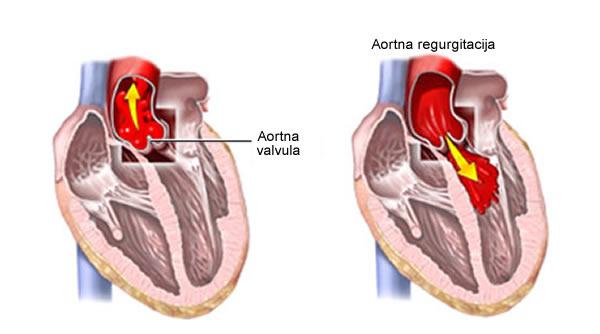 Aortna insuficijencija