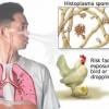 histoplasmosis1