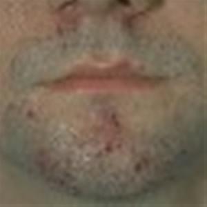 OSTIOFOLLICULITIS