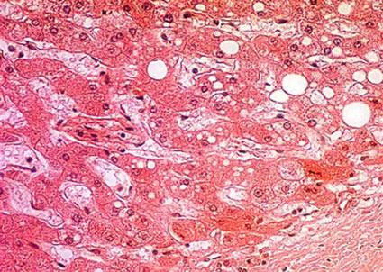 Degeneratio hepatolenticularis