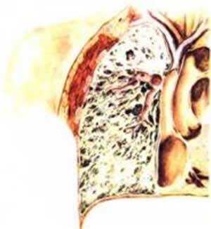 silikoza