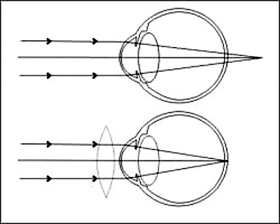 Hipermetropija