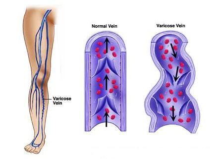 Proširene vene i trudnoća