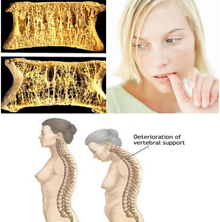 Osteoporoza i depresija