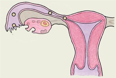 Tubarna trudnoća
