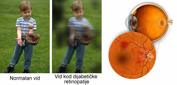 Dijabetička retinopatija