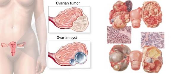Rak jajnika i jajovoda