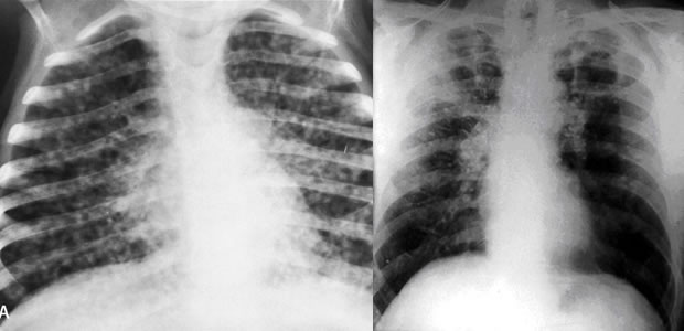 Silicotuberculosis