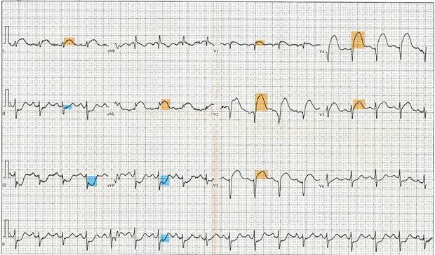 infarkt prednjeg zida miokarda