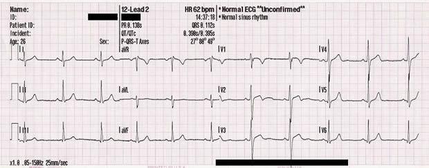 Fiziološki EKG