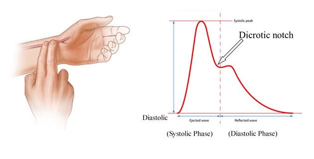 Arterijski puls