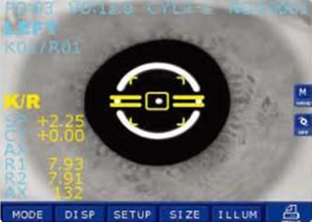 Automatsko određivanje refrakcije oka