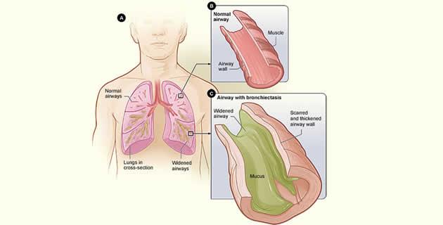 Bronhiektazije