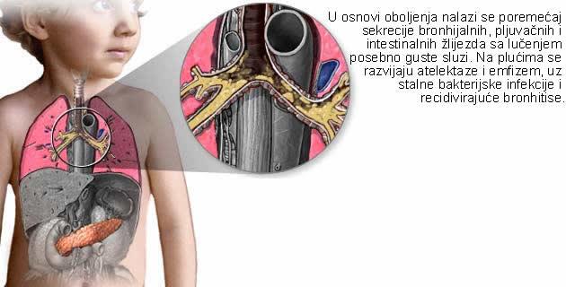 Cistična fibroza