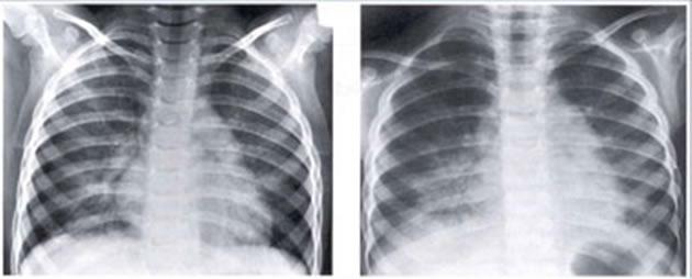 Plućna hemosideroza