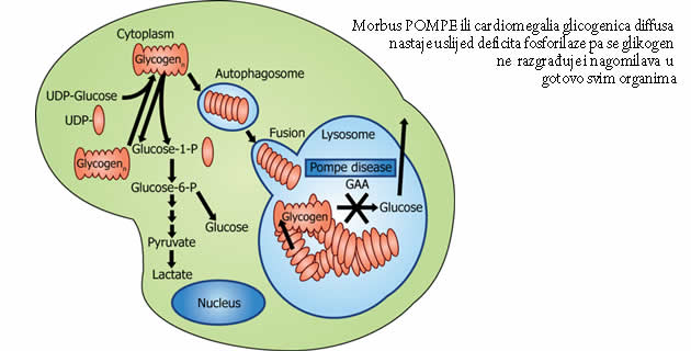 Pompeova bolest