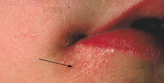 Angulus infectiosus oris