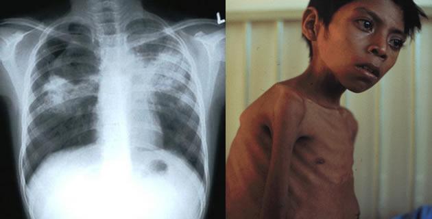 Tuberkuloza