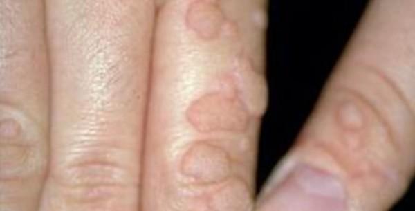 Verrucae vulgares