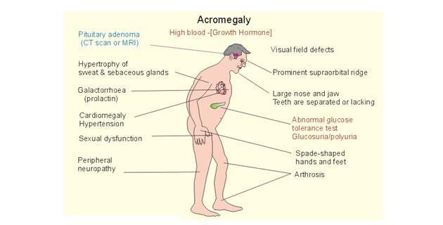 Akromegalija