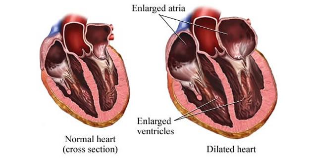 Hipertrofija srca