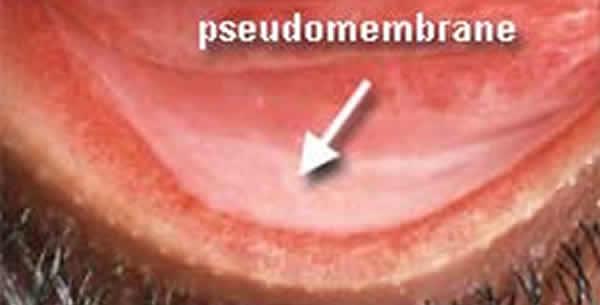 Conjunctivitis pseudomembranacea