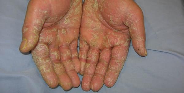 Dermatitis e contactu allergica acuta