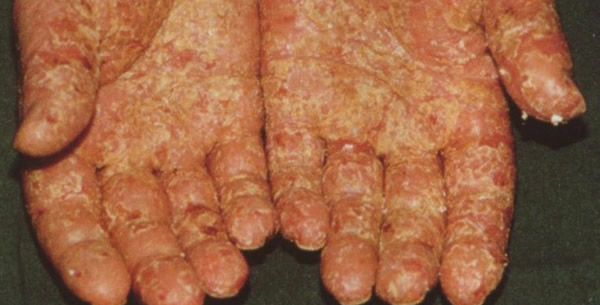 Dermatitis e contactu allergica chronica