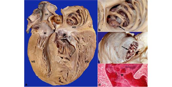 Endomikardna fibroza