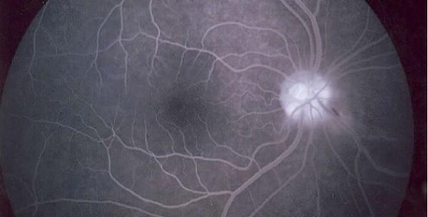 Fluoresceinska angiografija