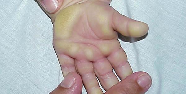 Hyperkeratosis palmaris et plantaris cum periodonthonpathia