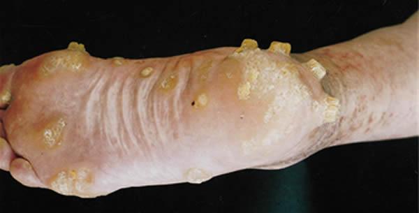 Keratosis palmoplantaris maculosa seu papulosa