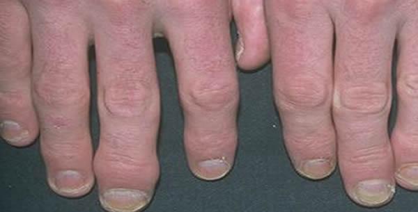 Psoriatic arthropathy