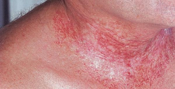 Radiodermatitis chronica