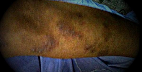 Dermatitis nummularis
