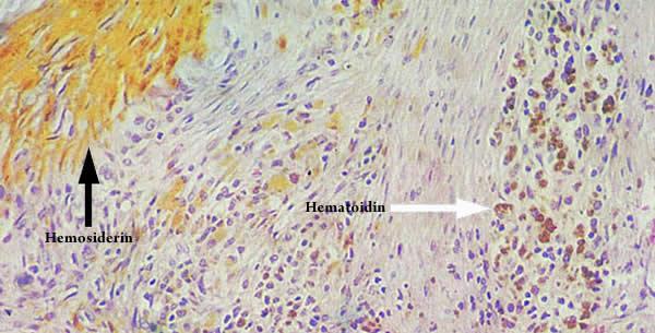 Hematoidin