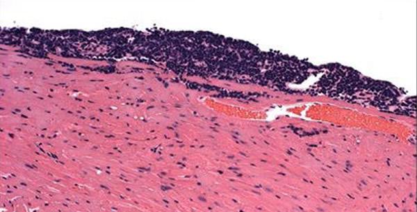 Akutni virusni miokarditis