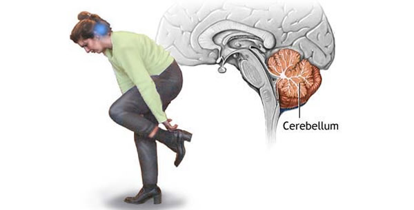 Cerebelum
