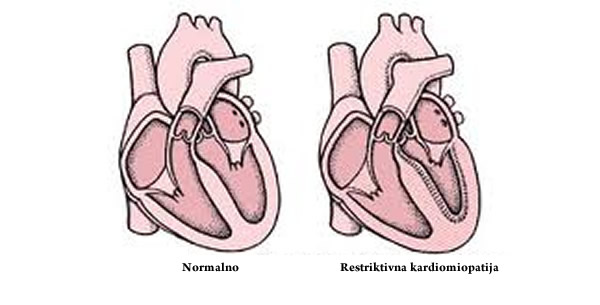 Restriktivna kardiomiopatija
