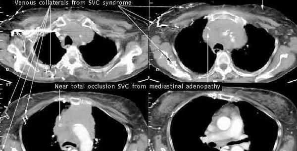 Sindrom gornje šuplje vene