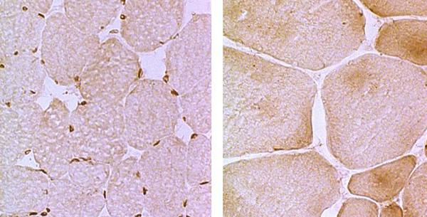 Emeri-Drajfusova mišićna distrofija