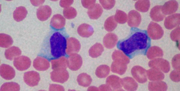Infektivna mononukleoza