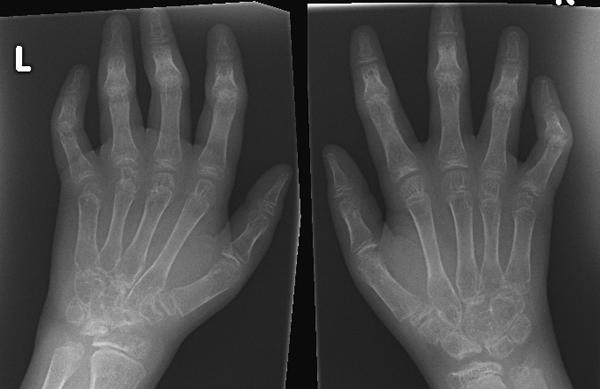 Juvenilni hronični artritis