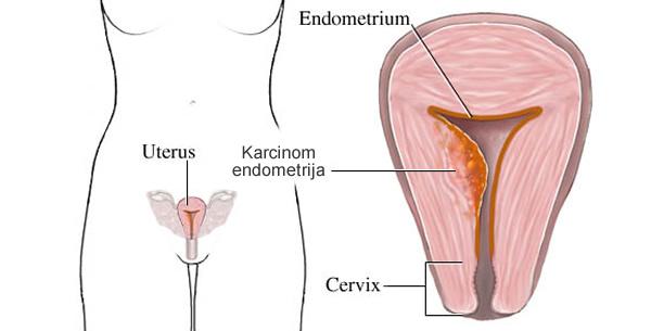 Karcinom endometrija