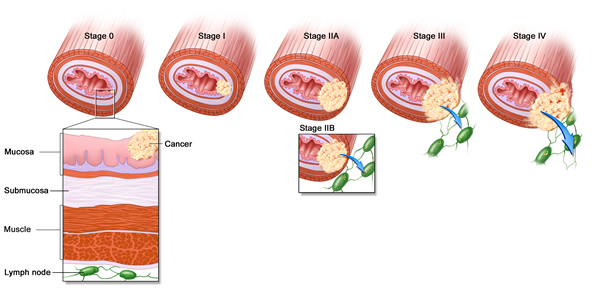 Karcinom jednjaka